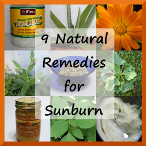 9 Natural Remedies for Sunburn
