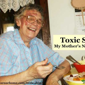 Toxic Skin – My Mother's Nightmare