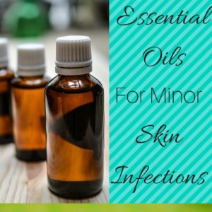 Essential Oils for Minor Skin Infections