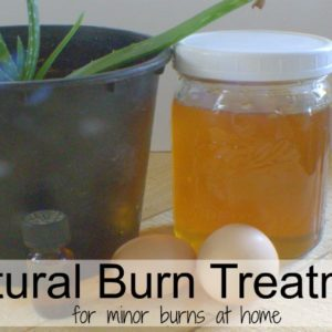 How To Treat Minor Burns At Home